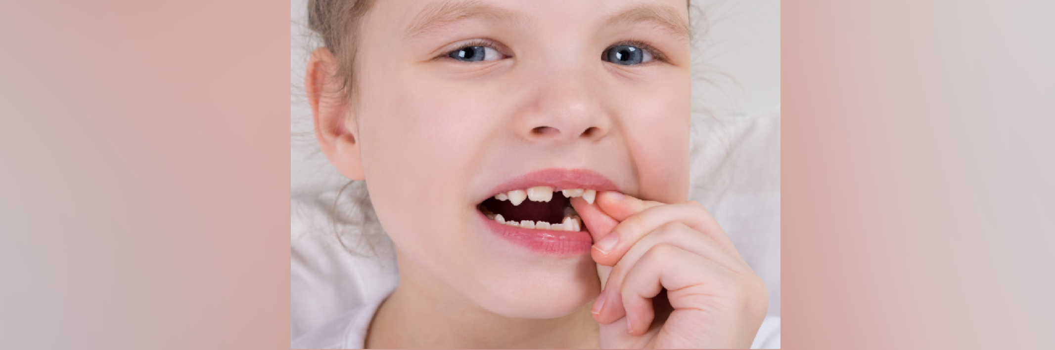 What To Expect After A Baby Tooth Extraction