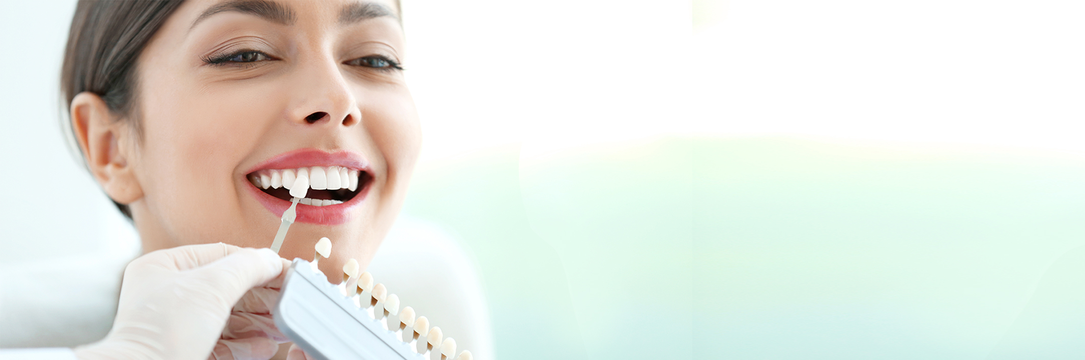 The Facts You Need to Know About Dental Veneers