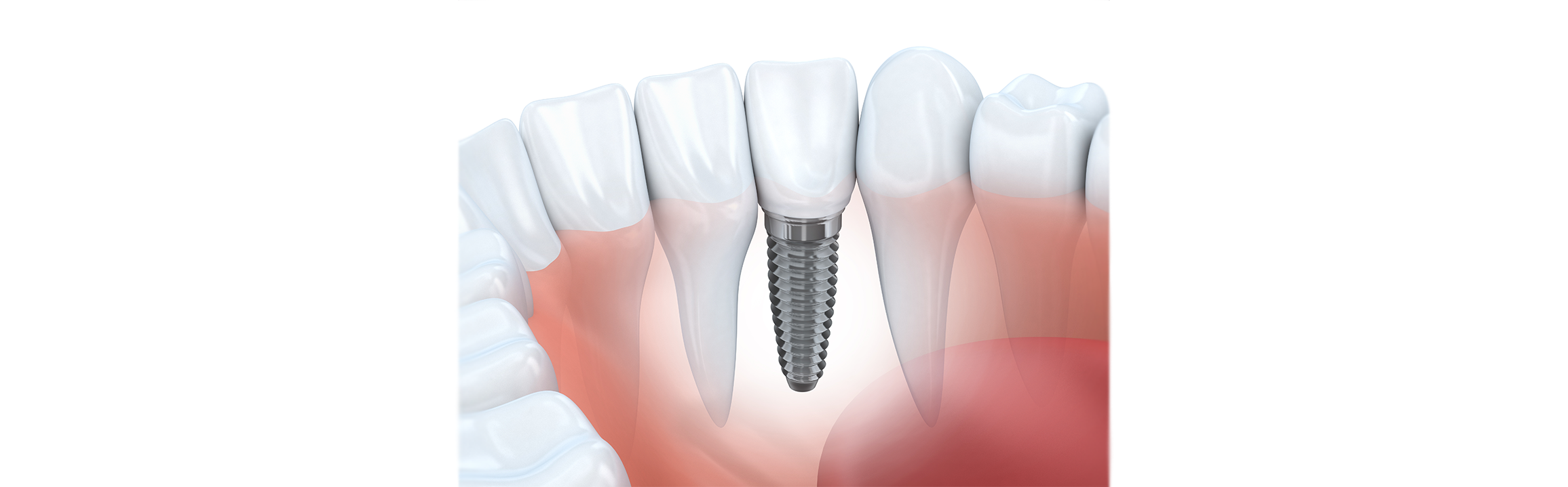 Will Your Dental Implants Change Over Time?